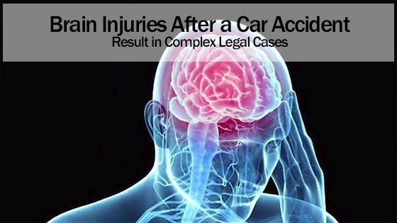 Brain Injuries After a Car Accident Result in Complex Legal