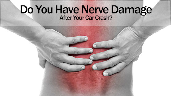 Do You Have Nerve Damage After Your Car Crash? | Attorney Kohm
